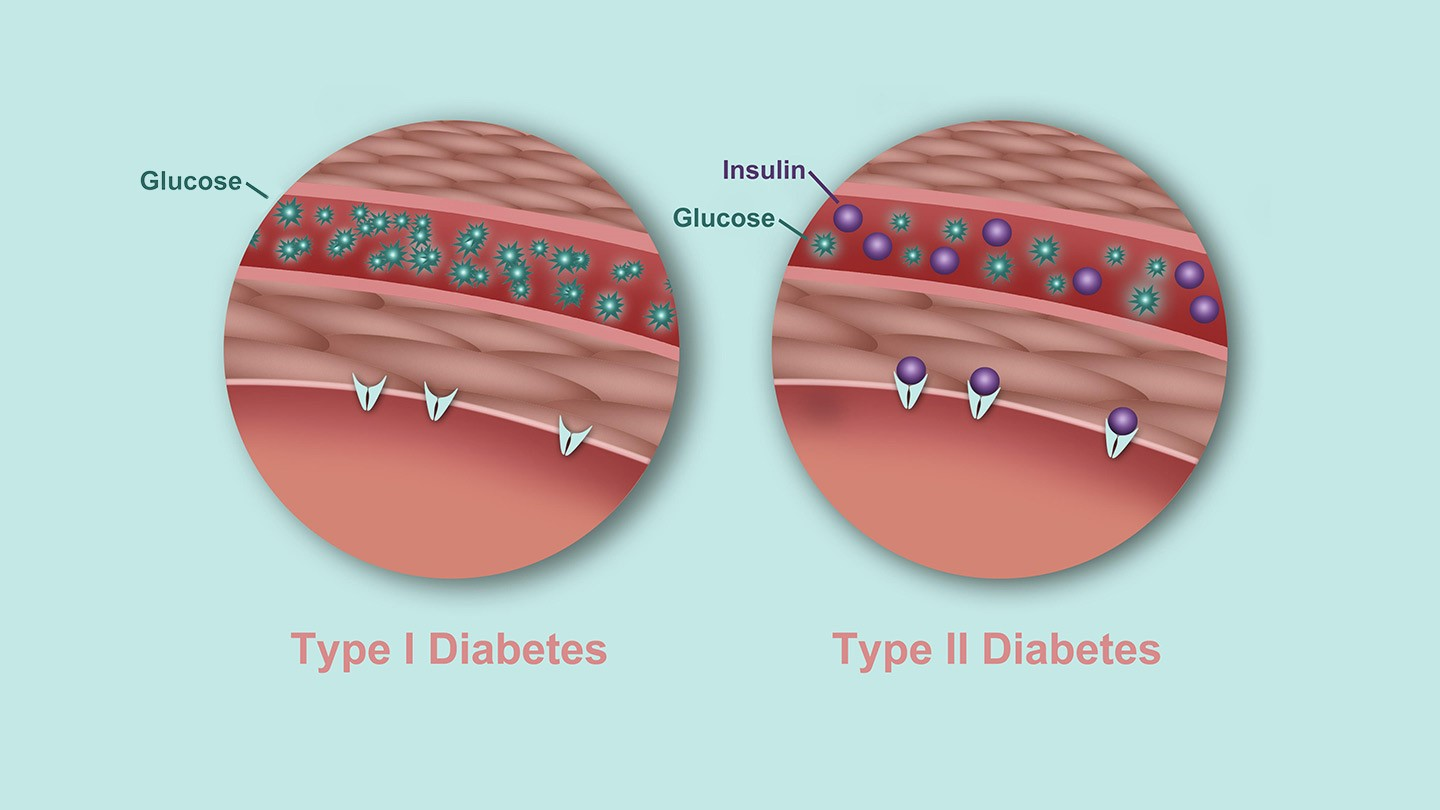 how sleep affects diabetes control and a1c levels pdf